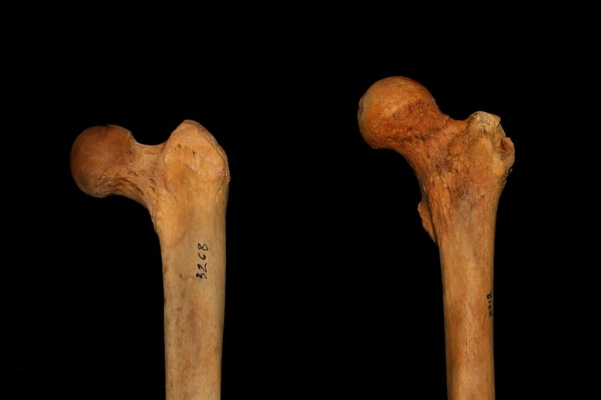 Femur_Inclination-e1506904732618