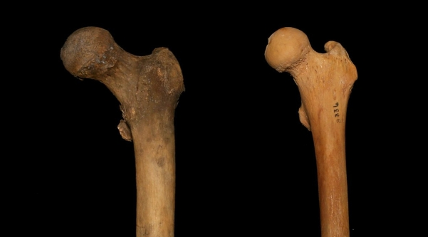 Femur_Neck_Length-e1506903738892